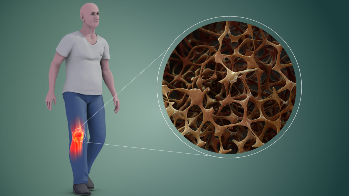 Experts Indicate Enhancing lifestyle to prevent osteoporosis