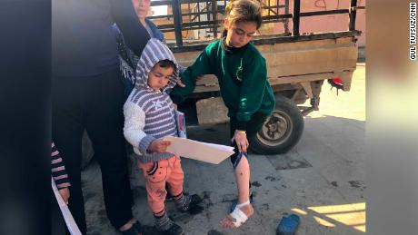 Dalaa shows the injuries she received in the airstrike