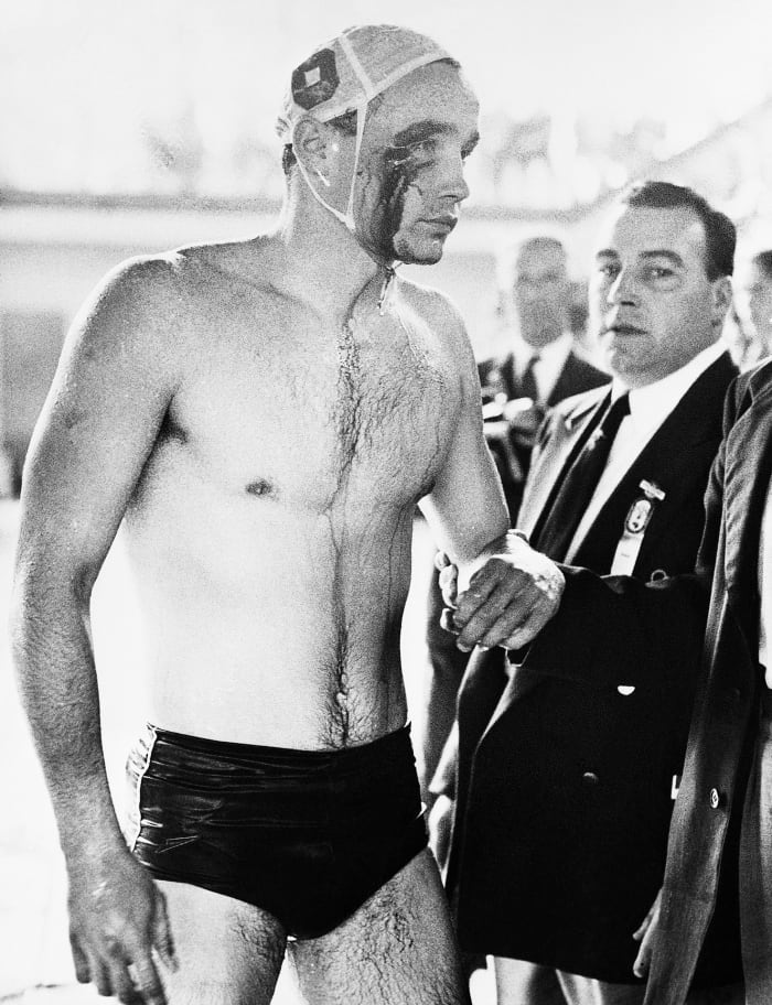 Blood is flowing from the cut eye of Ervin Zádor, injured in a fight with Russian water polo players during the last minutes of the Soviet-Hungarian match.  The match ended in chaos with the crowd booing the Russians.  Throughout the match, which Hungary won 4-0, fists, elbows, knees and feet were used whenever the players made contact.